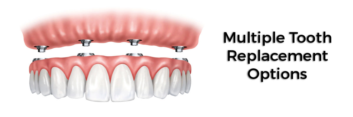 Roswell Multiple Teeth Replacement Options